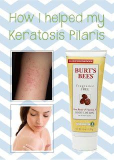 How I helped treat my keratosis pilaris
