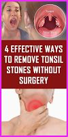 Tonsil Stones Can Easily Be Removed Without Surgery! Stones Can Easily Be Removed Without Surgery! Remove Unwanted Facial Hair, Unwanted Hair, Foot Detox Soak, Tonsil Stones, Nail Fungus, Mouthwash, Oral Hygiene, Hair Removal, Home Remedies