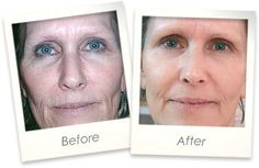The Science Behind Recover SEACRET Wrinkle Fighter BOTOX IN A BOX Dead Sea Minerals Mud