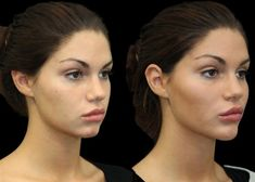 The Intriguing World of Facial Fillers