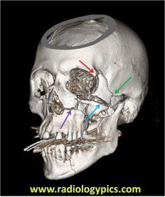 Zygomaticomaxillary Complex Fracture – AKA Tripod Fracture