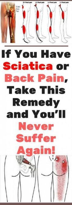 If You Have Sciatica or Back Pain, Take This Remedy and You'll Never Suffer Again! #health #beauty #diy #pain #backpain #healthy #fitness