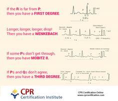 Heart Block poem. #nurses #ekg #ems #CPR #CPRcertification #hospitals #clinics #patient