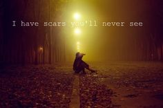 I have scars you will never see.