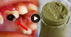 Diş Çürüklerinizi Tamamen Yok edin.. Her Evde Bulunuyor.. Kimse Bilmiyordu.. Çürükler, diş dokusunda meydana gelen, bakteri plaklarının ürettiği asitlerin neden olduğu mineral kaybından dolayı ortaya çıkar. Şeker yediğimizde dişlerimizin çürüyeceğine dair yaygın bir kanı olmasına rağmen aslında çürüğü tetikleyen birçok besin maddesi vardır. Aslında diş problemleri beslenme dengesizliğinden kaynaklanır. Bu sebeple çürüğü önlemek ve tedavisi …