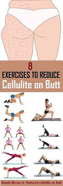 Cellulite Booty Work