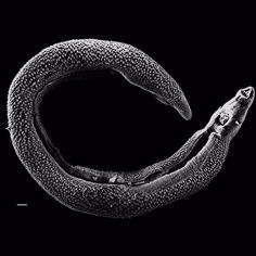 What would the world be like if there were no parasites? You might actually miss