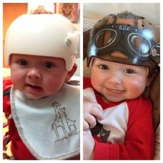Artist Turns Corrective Helmets for Babies into Works of Art | Pleated-Jeans.com
