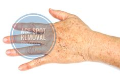 Age spot or liver spot or sunspot or solar keratosis are lesions that usually occur in fair-skinned people older than 40 years. These spots appear in areas that have been exposed to the sunlight – age spots on face, age spots on hand, neck area, back, etc. They have a slightly scaly surface, dry