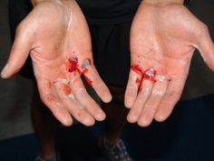CrossFit! Take care of your hands! Prevention tips