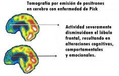 Pick una forma de degeneración del lóbulo frontal se caracteriza por sus acumulaciones anormales de proteína tau en áreas cerebrales.