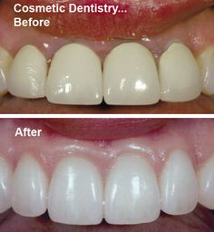 Cosmetic dentistry is the branch of dentistry, where a number of specialities work together to provide a bright and glistening smile to the face.. for more information visit our website.. http://www.dentalimplantsclinicindia.com/