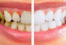 Устранить зубной камень, налет и отбелить зубы всего за 2 минуты можно, зная эти 3 рецепта!