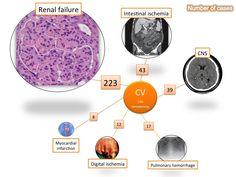 HCV-related cryoglobulinemia may result in progressive (renal involvement) or acute (pulmonary hemorrhage, gastrointestinal ischemia, CNS involvement) life-threatening organ damage.