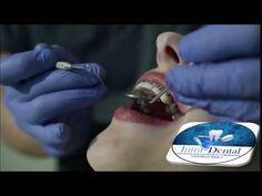 Ortodoncia Dental, Youtube, Oral Hygiene, Al Dente, Orthodontics, Teeth, Youtubers, Dentist Clinic, Tooth