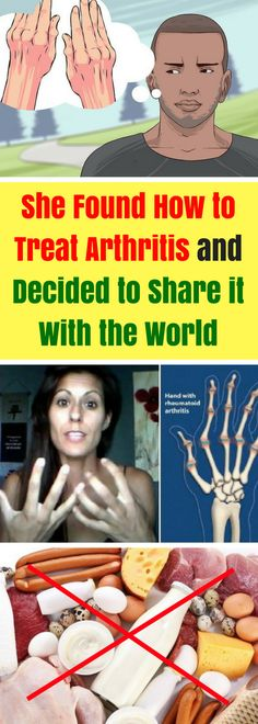 """Arthritis is a condition that can cause chronic pain and inflammation, as well as stiffness of the fingers, toes, knees, hands, hips, jaw, and other joints in the body. Rheumatoid arthritis is a disease which frequently develops its symptoms gradually, over a period of about several weeks, but sometimes it """"evolves"""" much faster, over a period of several days. The pain in the joints that is the result of rheumatoid arthritis is normally a throbbing and aching pain. Usually, it is worse in the…"""