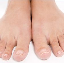 1000 Images About Health Feet Foot Problems On