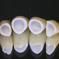A dental crown is a cap, which is placed on the entire tooth to protect it or change its shape, appearance or colour. Dental crowns cover the entire tooth till Medical Dental, Dental Health, Dental Care, Oral Health, Health Tips, Health Care, Teeth Implants, Dental Implants, Affordable Dentures