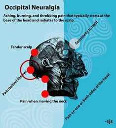 Migraine Headaches – Headache And Migraine Relief Today Migraine Pain, Chronic Migraines, Migraine Relief, Chronic Fatigue, Chronic Illness, Chronic Pain, Migraine Diet, Occipital Neuralgia, Neuralgia Symptoms