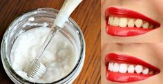 Forget the dentist! These 3 simple tips can whiten your teeth at home - Personal Care Beauty Care, Diy Beauty, Beauty Hacks, Emergency Dentist, Teeth Care, Skin Care, White Teeth, Health Magazine, Belleza Natural