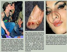 Overdose Addiction| Serafini Amelia| Amy Winehouse| Domestic Violence