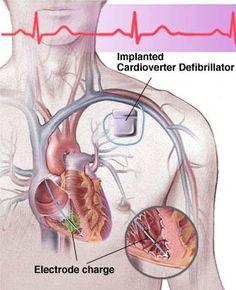 Universal Cardiac Solutions LLC - Cardiac Device Implants- implanted cardioverter defibrillator (ICD)
