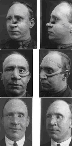 The process of reconstructing a face. Work of Dr. Henry Gillies, founder of modern plastic surgery.