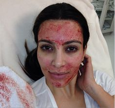 Kim Kardashian Blood Facial seriously!?