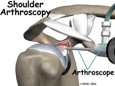A labral tear, an unknown condition until recently, can cause pain and a catching sensation in the shoulder. Labral tears can be very difficult to diagnose. Shoulder Arthroscopy, Muscle Diagram, Shoulder Problem, Shoulder Surgery, Anatomy And Physiology, I Work Out, Nursing, Physics, Nice