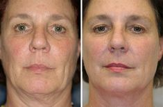 Searching for a skin tightening treatment in Vancouver? Thermage CPT is a non-invasive treatment for smoother, tighter skin. Call at the Anti-Aging Medical & Laser Clinic. Cystic Acne Treatment, Facial Yoga Exercises, Acne Out, Serum, Greasy Skin, Tighter Skin, Home Remedies For Acne, Jitter Glitter, Skin Whitening