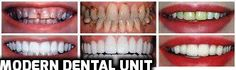 Corrective dentistry is for the most part used to allude to any dental work that enhances the appearance (however not as a matter of course the capacity) of a man's teeth, gums and/or chomp. Dental Hospital, Dentistry, Clinic, Teeth, The Unit, Modern, Trendy Tree, Dentist Clinic, Tooth
