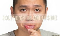 Sores, inside of mouth, are very painful for people. These sores put limit what they eat and cause not to enjoy what they eat. Many kind of factor might cause mouth sores. Healing of mouth sores might sometimes take very short time but on the other hand sometimes take long time in a painful way. Mouth sores are known as aft and these sores could be caused by lesions.  Many factos such as lack of oral and dental care, stress, vitamin deficiency, genetic factors, excessive consumption of hot…