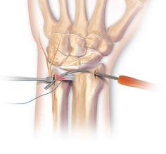 Triangular Fibrocartilage Complex (TFCC) Tears | Central Coast Orthopedic  Medical Group | 218x236