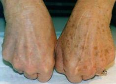 Algumas mudanças em sua pele ocorrem com o passar dos anos, e as manchas senis (melanoses) estão entre elas. Apesar de ter relação com a idade, este tipo de marcas na pele está mais proximamente relacionado com a exposição solar....