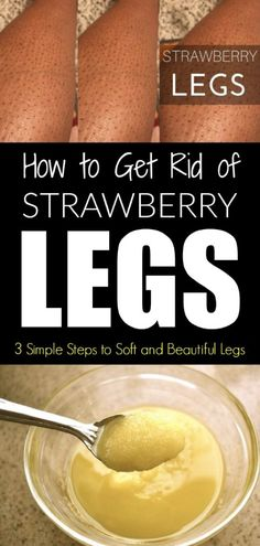 Skin Care Remedies How To Get Rid Of Strawberry Legs – 3 Simple Steps To Soft And Beautiful Legs - The medical term for strawberry legs is keratosis pilaris. The condition is a benign and chronic skin condition.It happens more in people with dry skin. Diy Beauty Hacks, Beauty Hacks For Teens, Beauty Ideas, Beauty Secrets, Beauty Products, Beauty Habits, Beauty Guide, Skin Products, Makeup Tricks