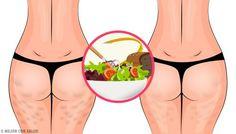 Gropițele inestetice de pe coapse sau fese sunt coșmarul oricărei femei. Află cum să scapi de celulită cu o alimentație sănătoasă! Combattre La Cellulite, Marfan Syndrome, Reduce Stretch Marks, Vicks Vapor, Potato Juice, Anabolic Steroid, Derma Roller, New Skin, Wellness Tips