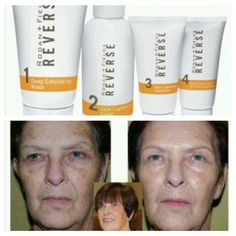 R+F REVERSE for sun damage, dark spots, lightening and brightening skin!  www.cambriabostrom.myrandf.com #SkincareRoutineSteps #SkinCareForSunDamage #ClearSkinProducts Clear Skin Detox, Clear Skin Face, Face Skin, Skin Care Routine Steps, Skin Care Tips, Dark Spots On Skin, Brown Spots, Happy Skin, Homemade Skin Care