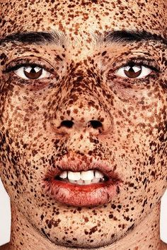"""Breathtaking Photos Show The Undeniable Beauty Of Freckles #refinery29  http://www.refinery29.com/2016/01/101631/brock-elbank-freckles-photography#slide-7  """"Elliott…is such amazing subject matter,"""" Elbank says. """"I was tagged in one of his Instagram shots, and once I see someone like this, I'm like a dog with a bone and I will try my hardest to get them on board [with] the series, simply because they enrich it; they make it."""" Elbank will shoot Elliott's younger brother for an upcoming…"""
