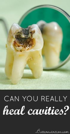 Can you REALLY heal cavities Separating FACT from FICTION with answers from a holistic dentist Butter Nutrition Teeth Health, Healthy Teeth, Dental Health, Oral Health, Health Heal, Dental Care, Health And Beauty Tips, Health Advice, Health And Wellness