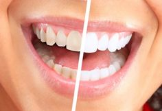 Dental veneer is a wafer-thin layer of custom-made shells, having the color of teeth, intended to cover the surface of the tooth to make it look great and improve the general appearance of the face.