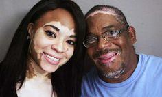 Certes, vous savez ou avez connu une personne qui souffre de cette maladie. Eh bien, maintenant le remède a été trouvé. Le vitiligo, aussi connu comme leucoderme, est une maladie dans laquelle la couleur de la peau afin progresiva.Según des études récentes...