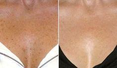 Существует множество причин возникновения пигментных пятен. Наиболее частые это изменение гормонального фона, возрастные изменения в организме человека, попадание на кожу прямых солнечных лучей, недостаток питательных веществ, наследственная предрасположенность человека, а так же болезни печени. Пятна появляются на коже лица, кожи рук, кожи спины и зоны декольте. Зачастую возрастные пигментные пят