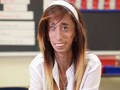YouTube's Lizzie Velasquez's message to bullying victims: 'You're not alone' #VidCon #VidCon2015
