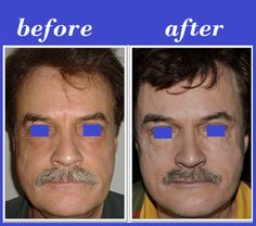 Brow Lift is a type of cosmetic surgery used to corrects the drooping of the outer brow line. This technique is also known as a temporal brow lift, and addresses sagging around the outside of the eyebrow almost exclusively.