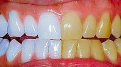 The Method Turmeric Teeth Whitener * You can also do this with only turmeric powder and water. Ingredients ◦1 tbsp of coconut oil ◦2 capsules worth turmeric powder (about ½ -1 tsp) ◦a little peppermint oil Instructions 1.Wet your toothbrush and dip it in mixture. Brush it on teeth as you would toothpaste. Allow to sit for 3-5 minutes. 2.Spit and rinse well. 3.Continue daily for a few days or even a week until you see desired results