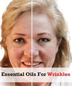 Essential Oils For Wrinkles | Health Clue. I LOVE coconut oil (solid, organic). I like to add lavender, chamomile (healing, relaxing) , sometimes teatree oil for cystic acne. If you put in on your skin while it is moist, it will absorb better. Same with liquid oils. Or add a touch of natural lotion.