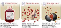 CDC - Hemochromatosis (Iron Storage Disease), Treatment ...
