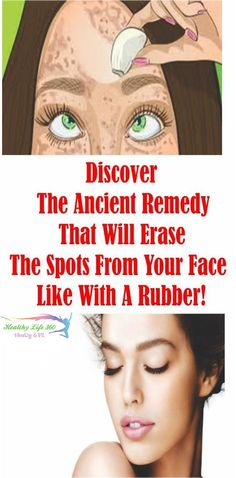 Get The Perfect Skin That You Always Wanted! Discover The Ancient Remedy That Will Erase The Spots From Your Skin Like With a Rubber!!!