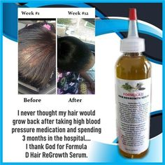 icu ~ Hair Oil Formula D Hair ReGrowth Serum For Fast Hair Growth DHT Blocker For Men And Women With Jamaican Black Castor Oil in 2019 New Hair Growth, Hair Growth Products, Castor Oil For Hair Growth, Relaxed Hair Growth, Black Hair Growth, Hair Growth Shampoo, Beauty Products, Bald Spot, Pumpkin Seed Oil