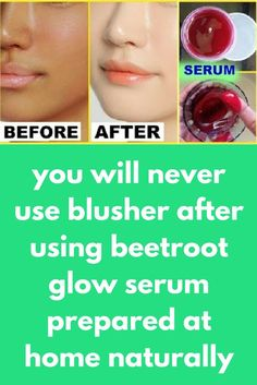 you will never use blusher after using beetroot glow serum prepared at home naturallyToday I will tell you how you can make a beetroot glow serum at home. It is a very good skin whitening agent and it also has lots of beauty benefits. Beetroot is an amazing beauty ingredient which can give you flawless and glowing skin with regular use. beetroot glow serum which is effective for …